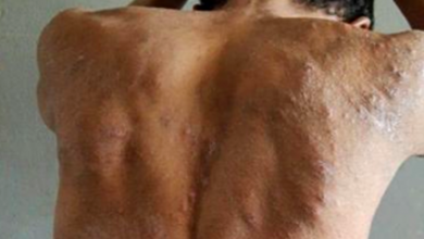 """Photo of Identificada a doença que """"devora a pele"""" dos presos de Roraima"""